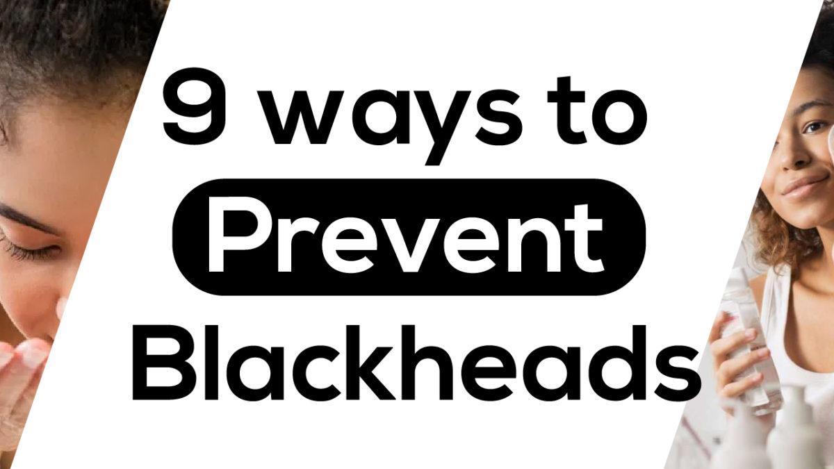 9 ways to Prevent Blackheads