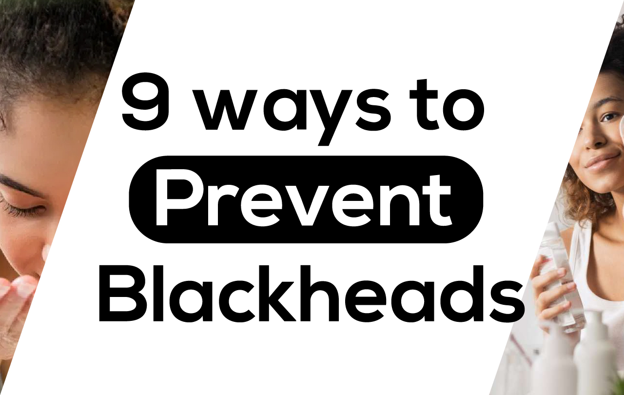 9 ways to Prevent Blackheads